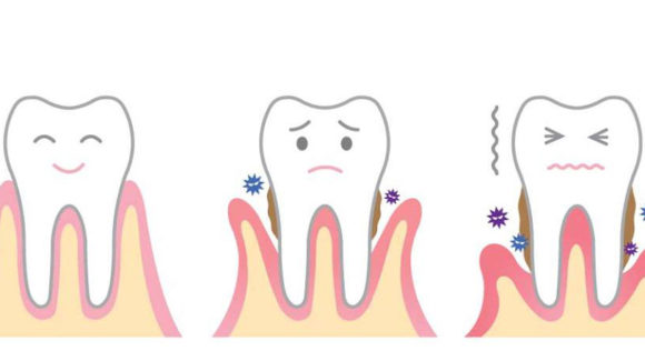 How to take care of your gums?