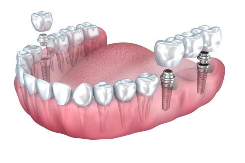 5 levinud küsimust hambaimplantaatide kohta