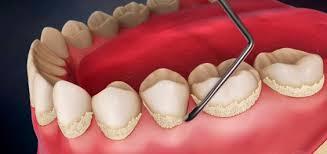 Kuidas eemaldada hambakattu ja hambakivi?